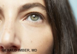 Tear Trough Augmentation with Filler